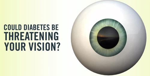 diabeteseyecheck.org